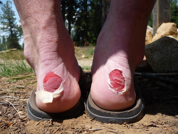 Blister Popping Two Camps Seattle Backpackers Magazine